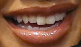 Picture of Saweetie teeth and smile