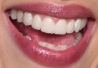 Scarlett Johansson S Teeth Pictures