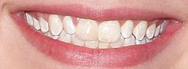 Picture of Sean Giambrone teeth and smile