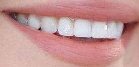 Picture Selena Gomez's teeth and smile
