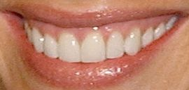 Picture of Shannon Elizabeth teeth and smile
