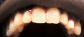 Picture of Shaquille O'Neal teeth and smile