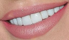 Picture of Sharna Burgess teeth and smile