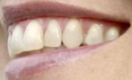 Picture of Sharon Stone teeth and smile