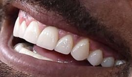Picture of Shemar Moore teeth and smile