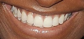 Picture of Simone Biles teeth and smile