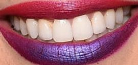 Picture of Cheryl Cole teeth and smile