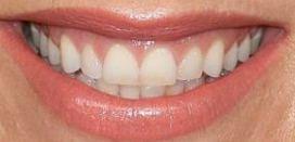 Singer Pink's teeth