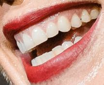 Picture of singer Pink's teeth and smile and smile