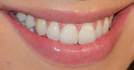 Picture of Stassi Schroeder teeth and smile