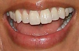 Picture of Stephanie Beatriz teeth and smile