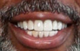 Picture of Steve Harvey teeth