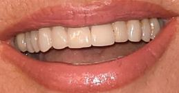 Picture of Suzanne Somers teeth