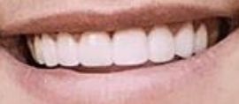 Picture of Tayler Holder teeth and smile