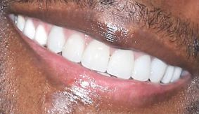 Terry Crews' teeth while smiling