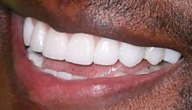 Terry Crews' teeth