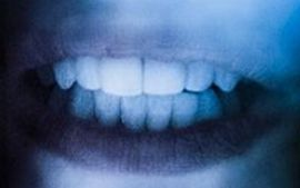 Picture of The Kid Laroi teeth and smile