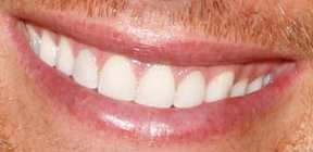 Tom Brady's teeth