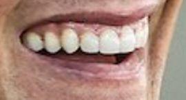 Tom Brady's teeth and smile