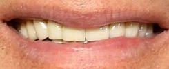 Tom Hanks teeth