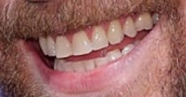 Picture of Tom Hiddleston teeth and smile