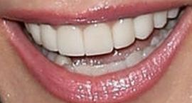 Picture of Tracey E Bregman teeth and smile