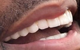 Picture of Tyler Perry teeth and smile