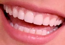 Vanessa Hudgens teeth