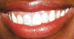 Picture of Venus Williams teeth and smile