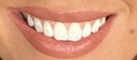 Picture of Victoria Larson teeth and smile