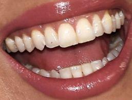 Whitney Cummings teeth