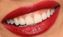 Picture of Whitney Peak teeth and smile