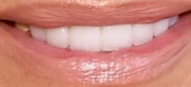 Picture of Yolanda Hadid teeth and smile