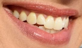 Picture of Yvonne Strahovski teeth and smile