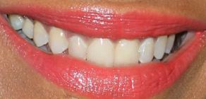 Picture of Zoe Saldana's teeth while smiling